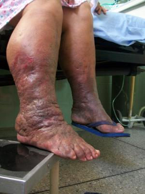 Lymphedema - Source: Wikimedia Commons